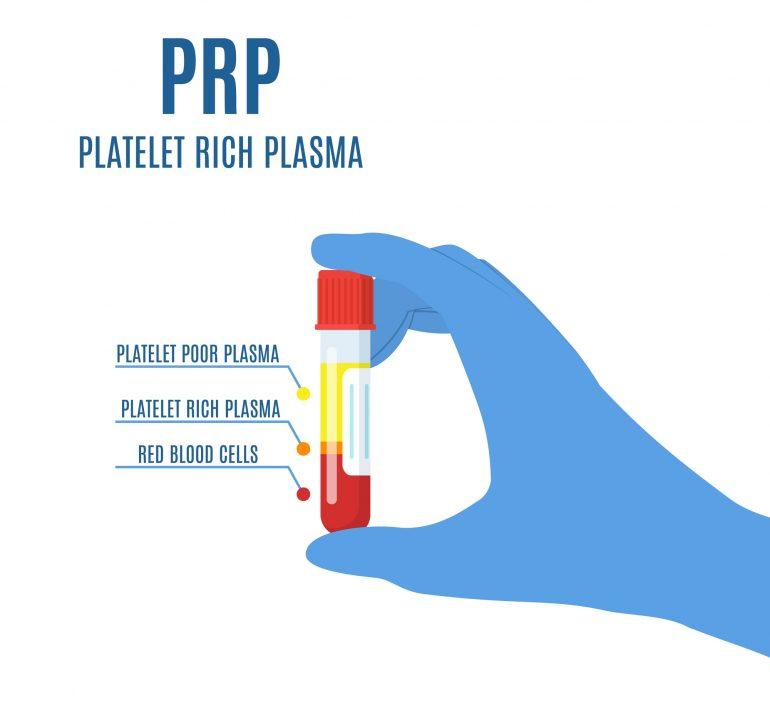 再生医療 PRP療法